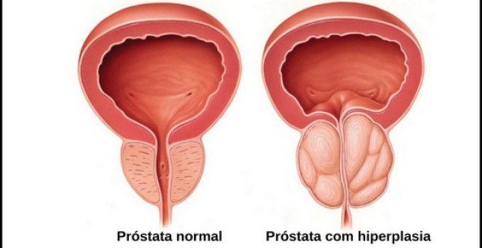 tumore prostata urinare la notte song