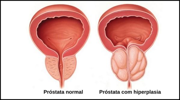 cáncer de próstata después de 75 años de cureit