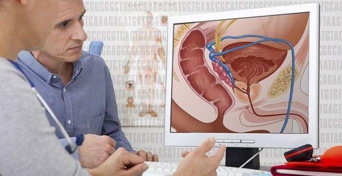 síntomas de infección de próstata en hindi