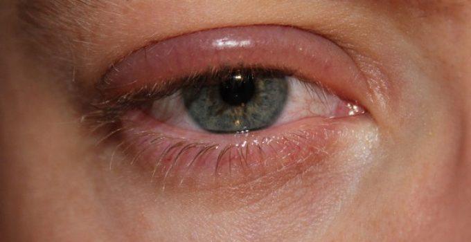 Alérgica hinchados ojos tratamiento reacción de